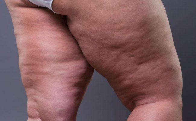 Obrzek tłuszczowy